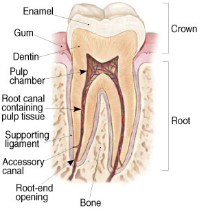 root canal graphic